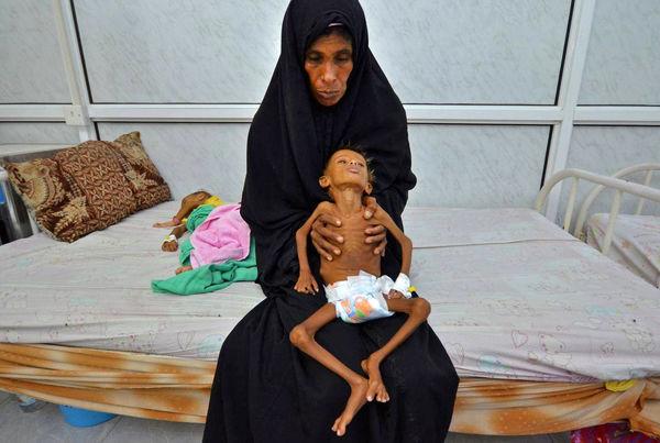 یمن در میانه فاجعه انسانی